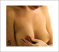 flüssigkeit aus der brust beim drücken